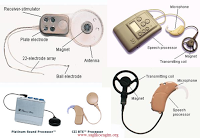 the complications related to the cochlear implant The purpose of this study was to assess the postoperative complications related to cochlear implants and to discuss the differences observed between adult and.